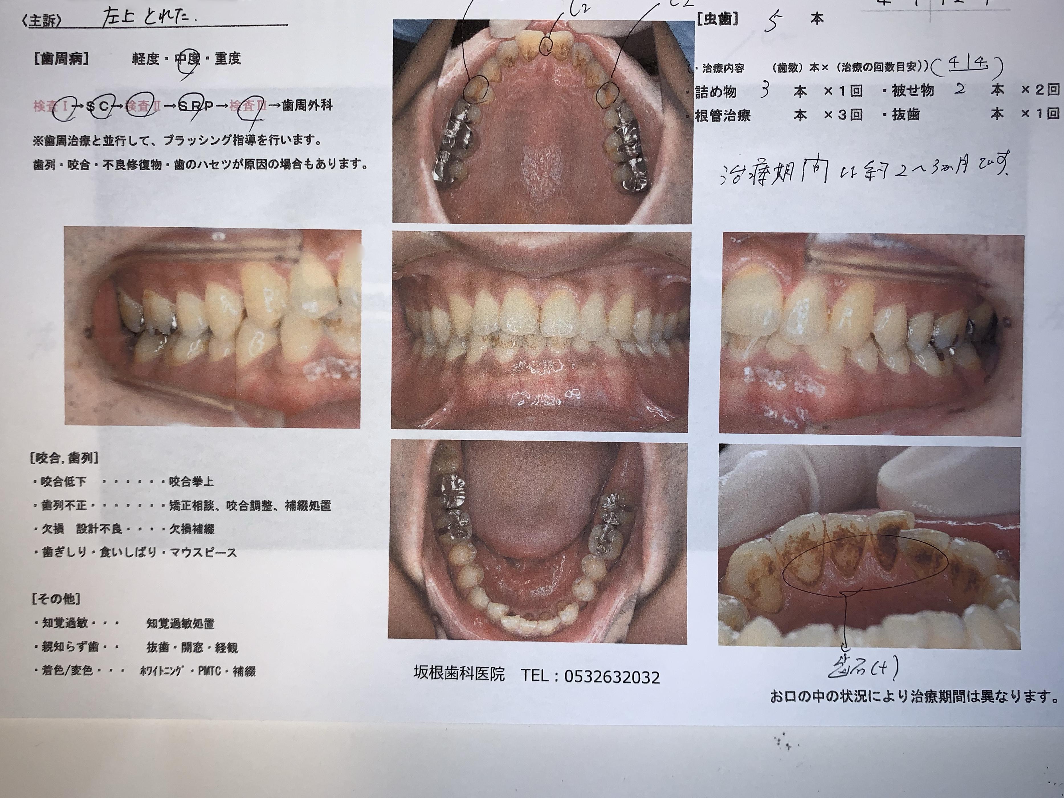 歯科治療の説明とカウンセリングについて