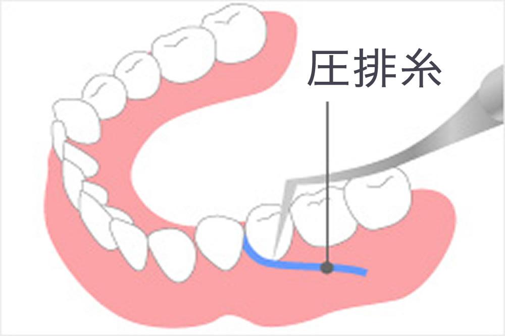 適合性を高めるための歯肉圧排