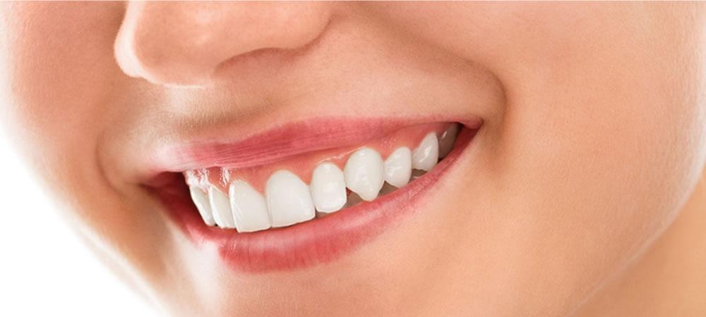 歯科矯正治療のご案内